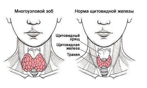 Что такое зоб щитовидной железы: симптомы и лечение народными средствами