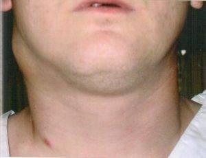 Лимфоузлы при ангине — причины воспаления, симптомы, лечение