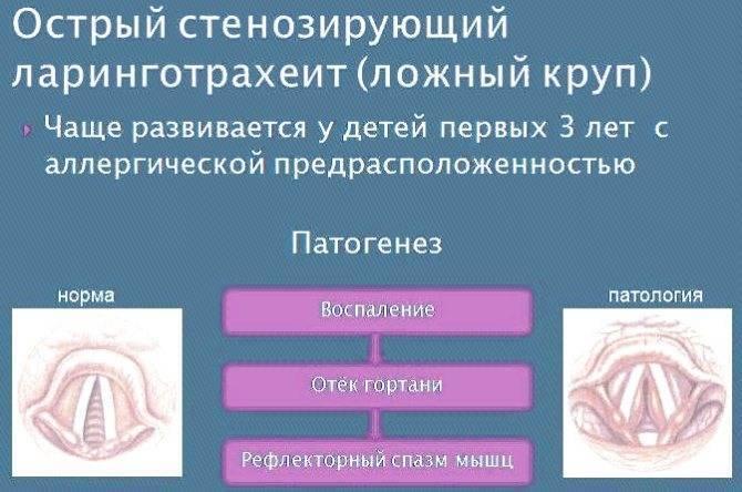 Лучше быть готовыми или изучаем симптомы и лечение стенозирующего ларинготрахеита у детей
