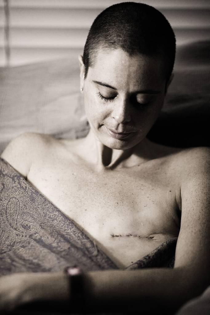 Жизнь после рака молочной железы