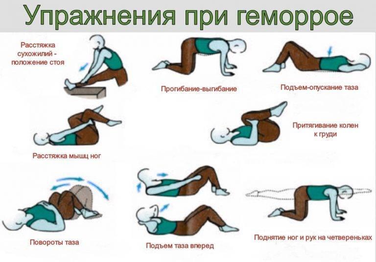упражнения от геморроидальных узлов