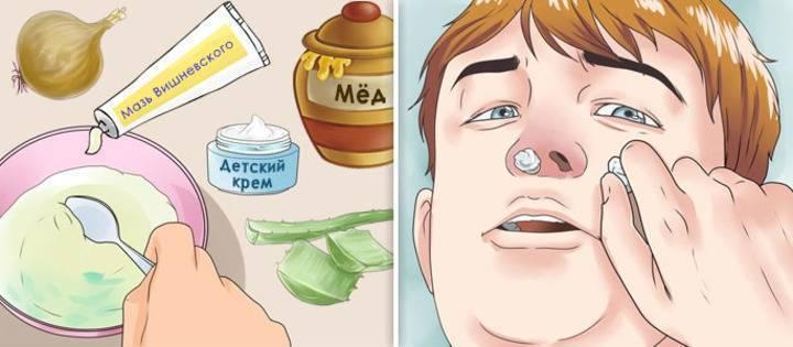 Сода, мед и масло – незаменимые помощники в лечении гайморита