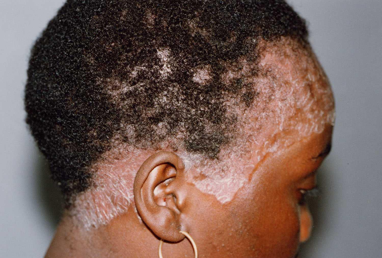 дегтярное мыло для волос от псориаза