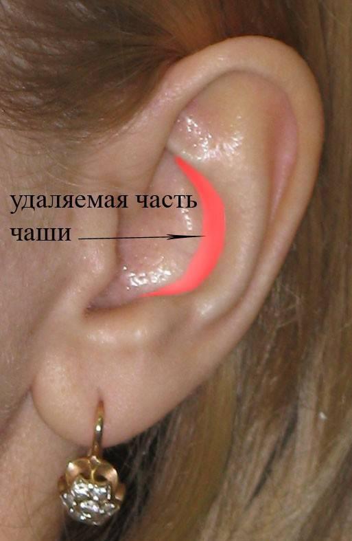 болит ушная раковина снаружи хрящ