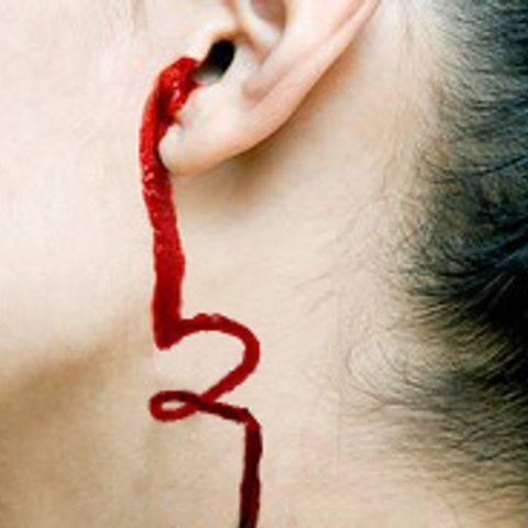 Из уха течет кровь: причины и что делать, если идет кровь из уха