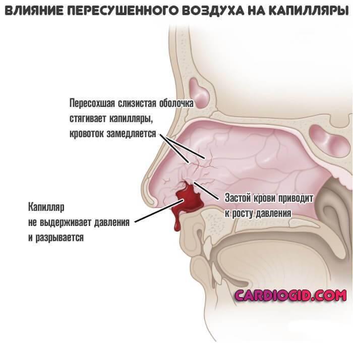 почему у беременных кровь из носа