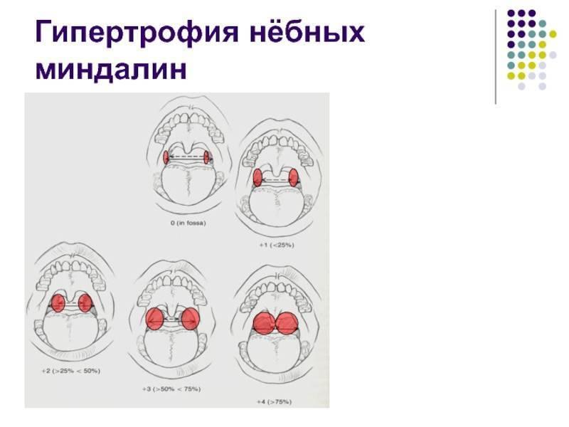 Гипертрофия миндалин | eurolab | педиатрия