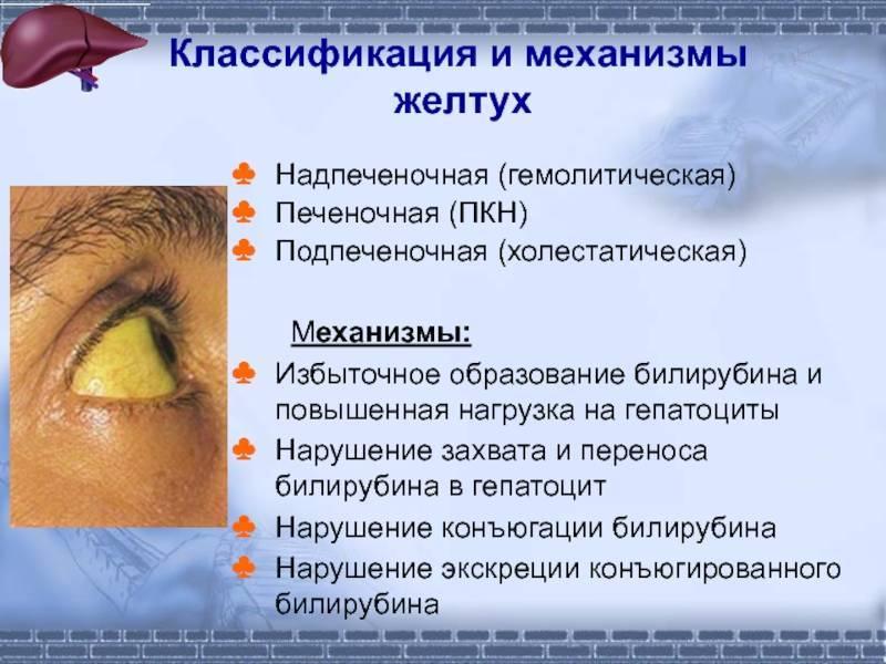 Холестатическая желтуха симптомы