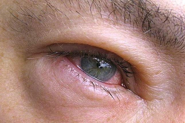 Аденовирусный конъюнктивит: лечение и профилактика