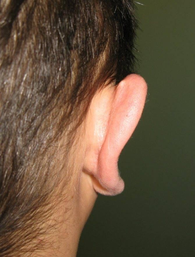 болит мочка уха что делать