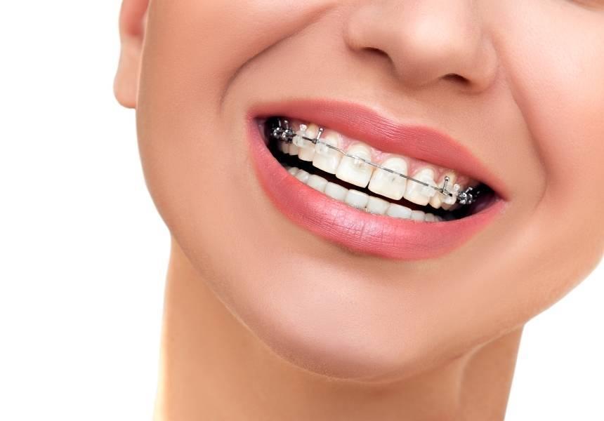 ортодонтические скобы