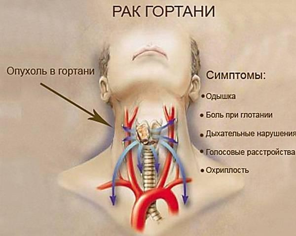 болит в горле справа при глотании
