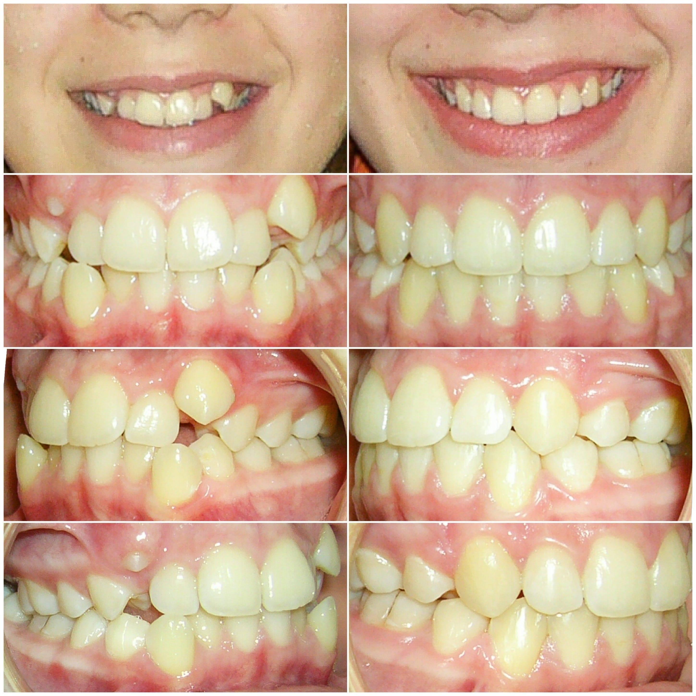 как можно выровнять зубы