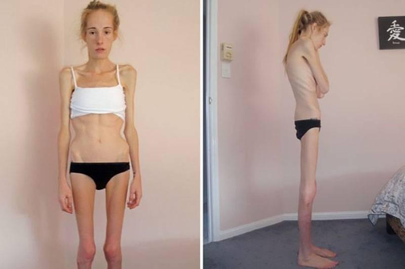 как заболевают анорексией