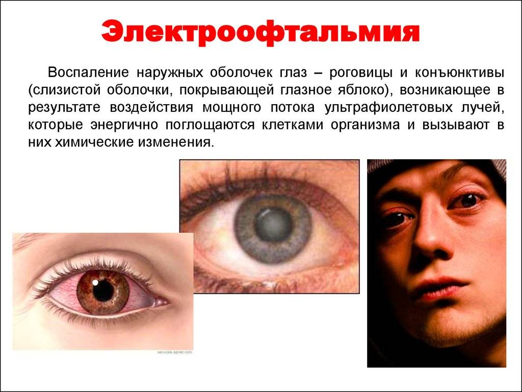 Болят глаза от сварки - что делать? средства при ожоге глаз сваркой