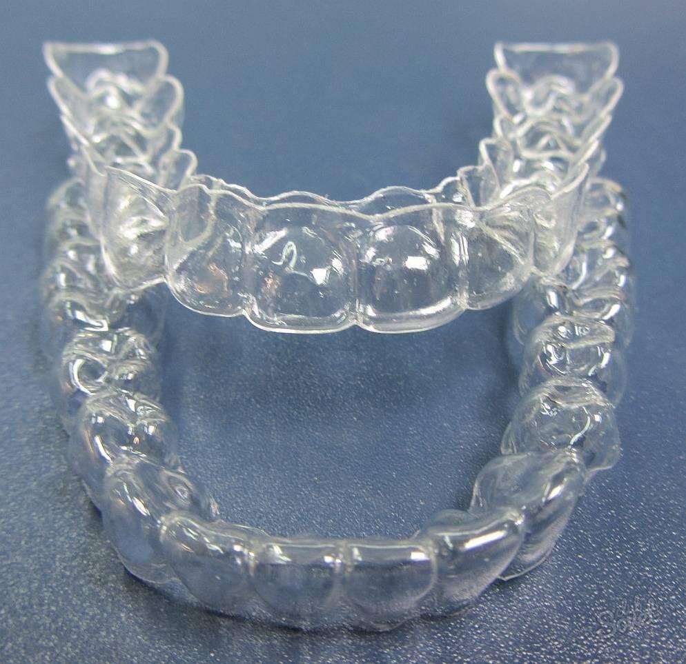 что такое капы для зубов