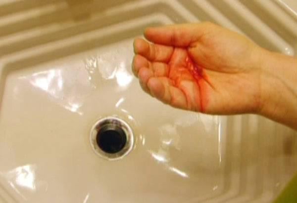 при кашле вкус крови во рту