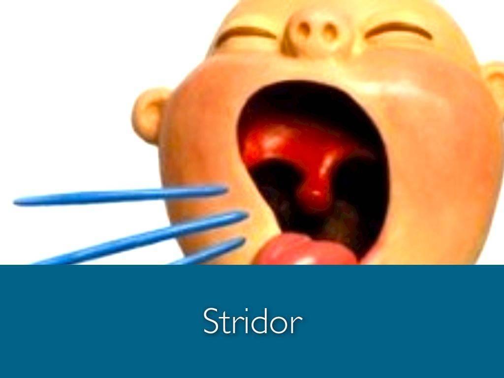 Стридор у грудничка: причины появления отклонения, симптомы заболевания, способы лечения