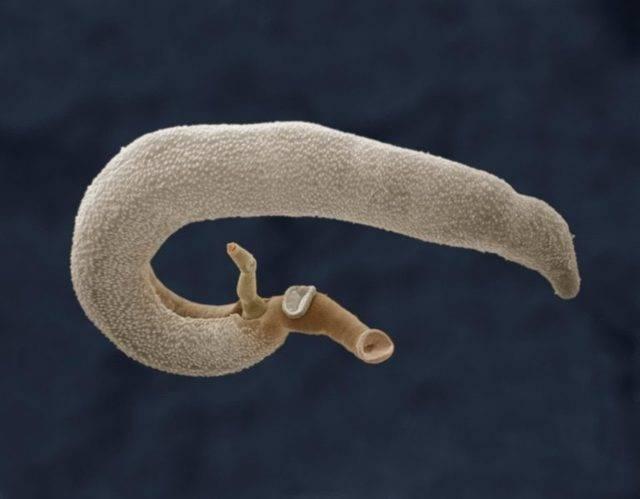 Как избавиться от паразитов в печени