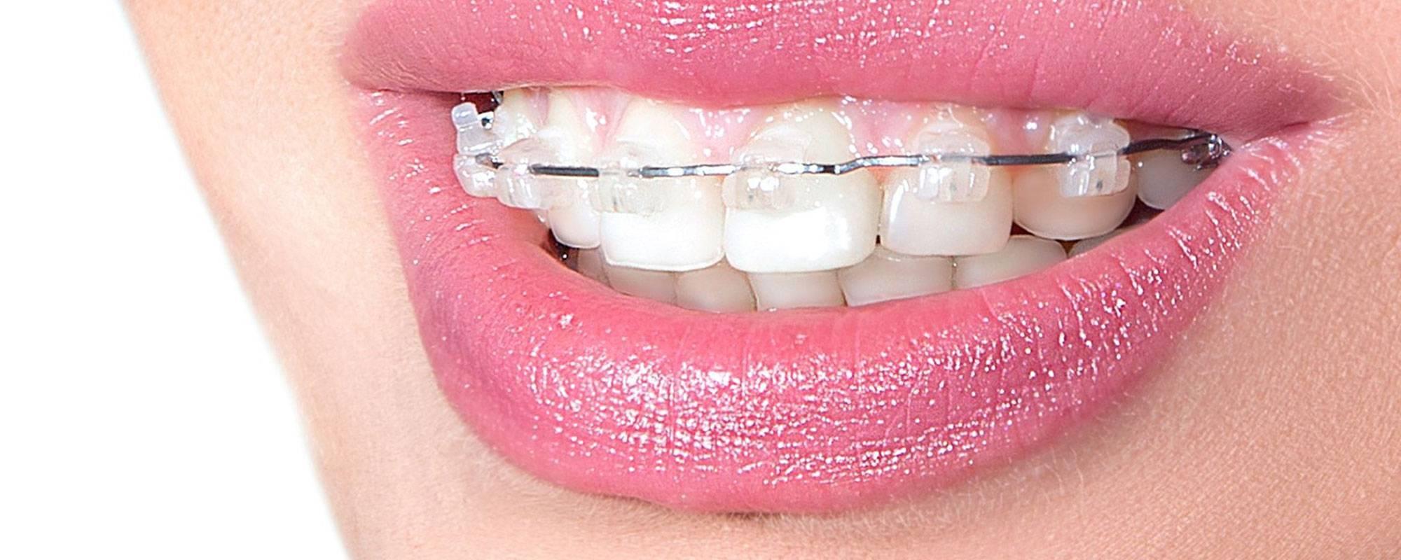 Лингвальные брекеты – цены на установку лингвальной брекет системы в москве   сеть стоматологических клиник «президент»