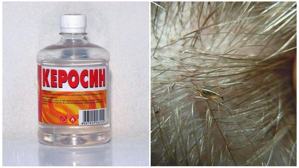 Что необходимо знать при использовании керосина от вшей?