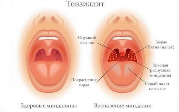 боль в горле при глотании лечение народными средствами