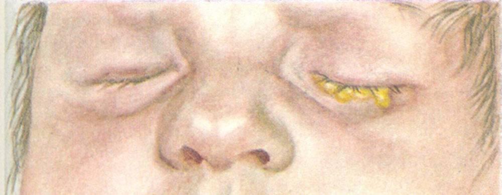 Симптомы и лечение хламидий у детей