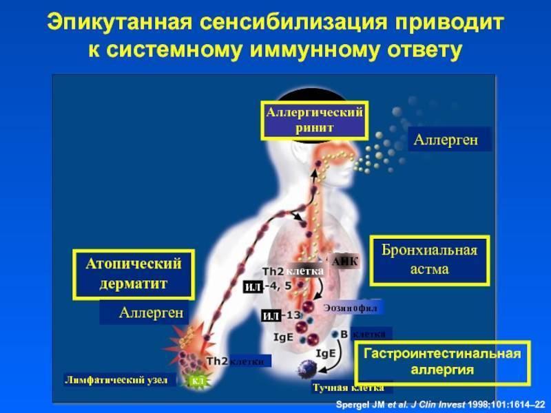 От атопического дерматита до бронхиальной астмы у детей