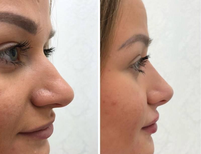 коррекция кончика носа без операции
