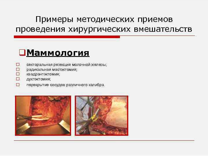 Секторальная резекция молочной железы (удаление фиброаденомы): показания, виды и состояние после операции