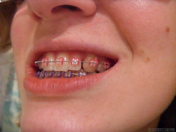 болят ли зубы после установки брекетов
