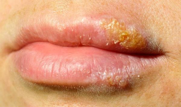 Сколько дней заразен герпес на губах?