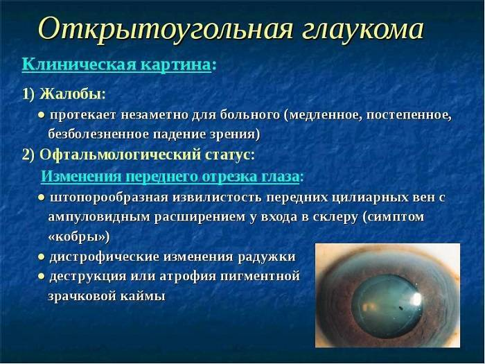 первичная открытоугольная глаукома