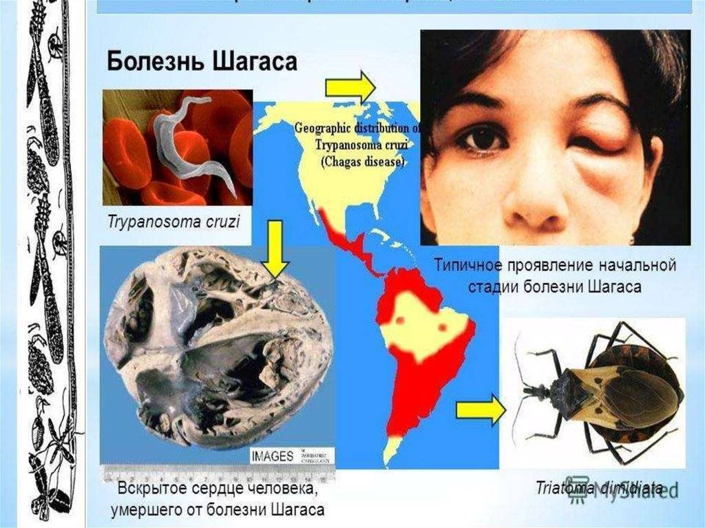 Болезнь шагаса - chagas disease - qwe.wiki