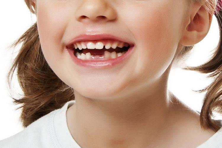 Значение молочных зубов, молочный прикус