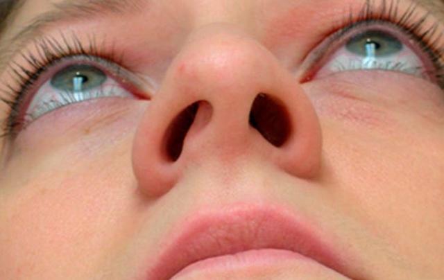 Отёк слизистой носа — как снять отёк? причины и лечение