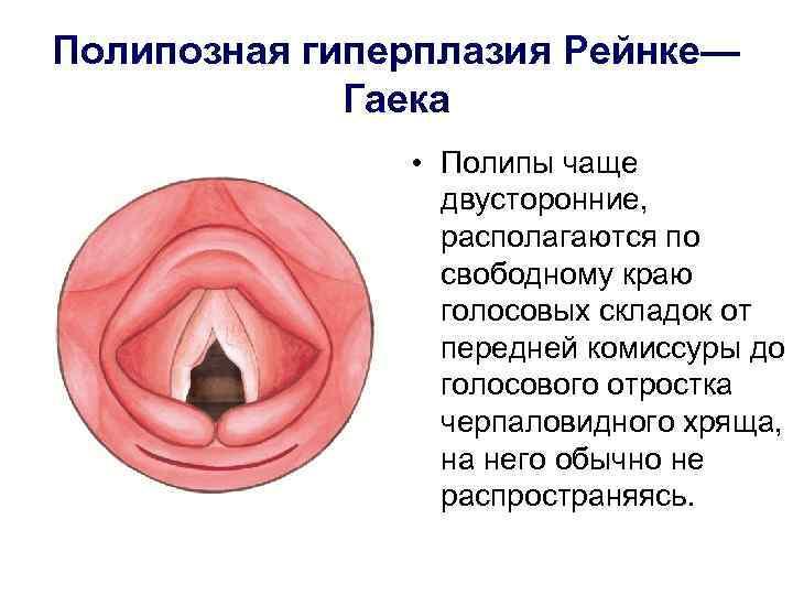 полипы в горле лечение