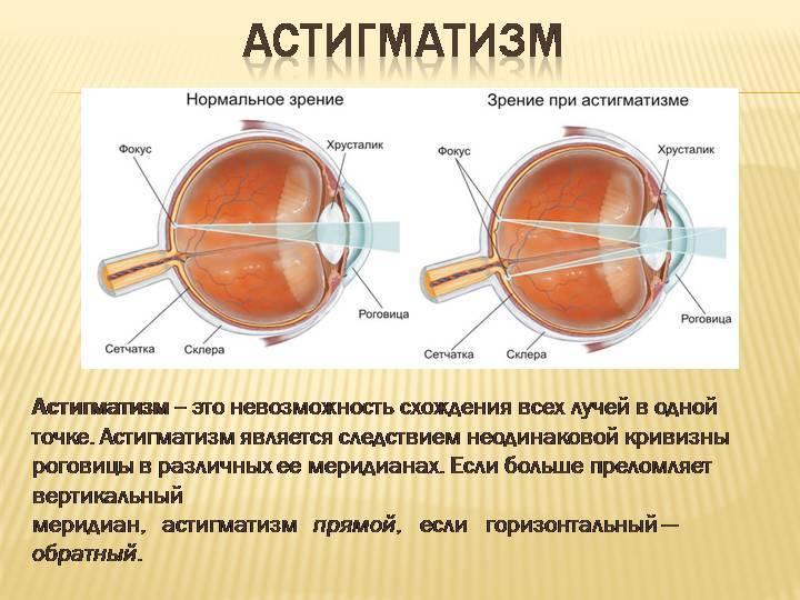 смешанный астигматизм обоих глаз у детей