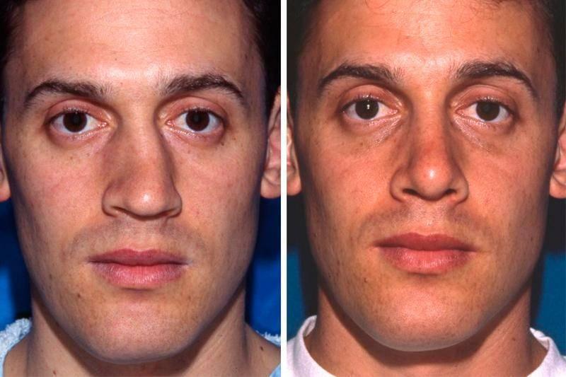 врожденное искривление носовой перегородки