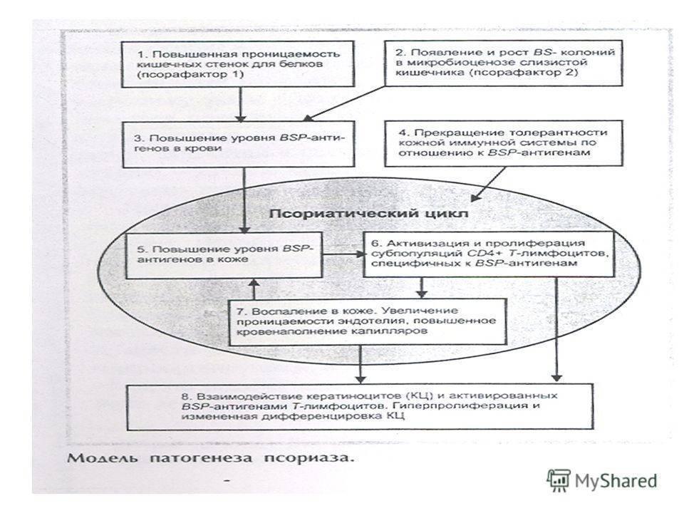 Об этиологии и патогенезе псориаза