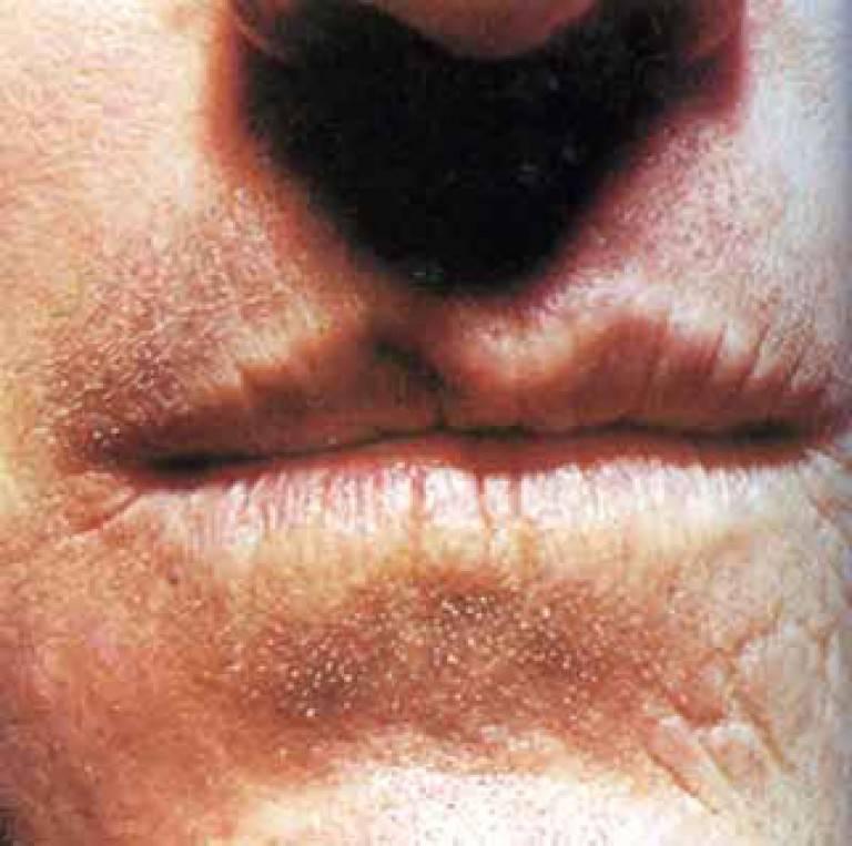 Сифилис горла