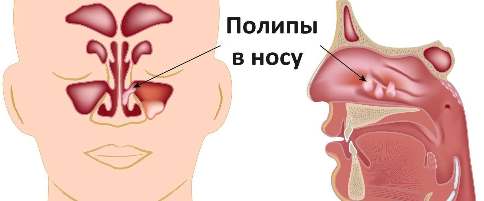 наросты в носу у ребенка