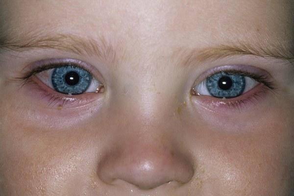 Слезится глаз у грудничка: почему он красный, закисает, гноится, что делать