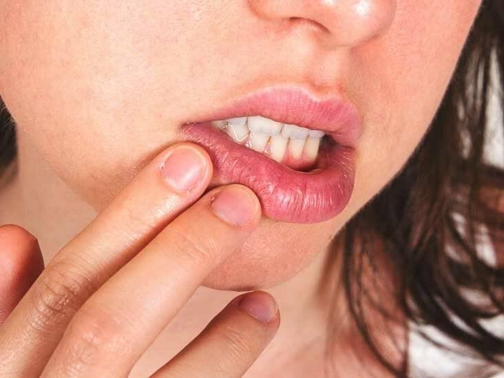 Герпес на губах: как вылечить быстро
