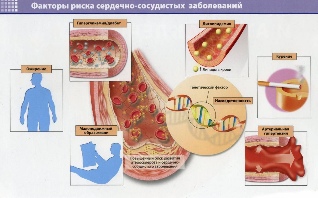 Атеросклероз сосудов. причины развития атеросклероза мифы и правда