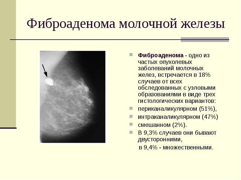 Злокачественные и доброкачественные опухоли молочной железы