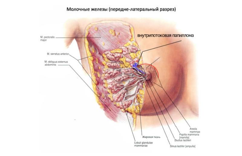 Внутрипротоковая папиллома молочной железы: лечение, операция по удалению, узи