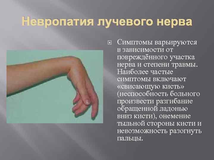 Симптомы и лечение неврита лучевого нерва