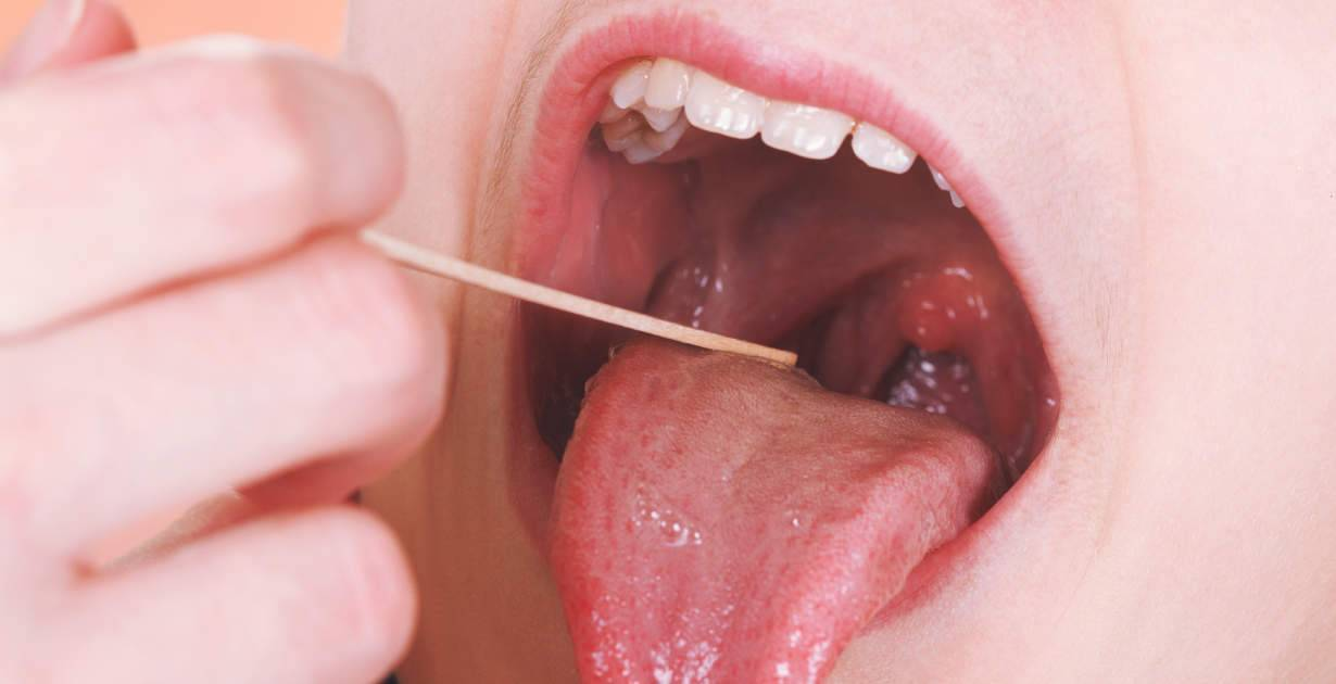 тонзиллит у детей лечение комаровский