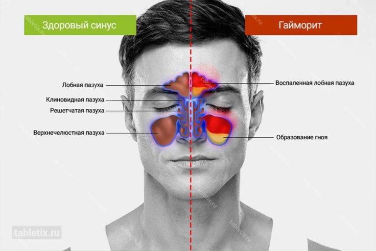 Что делать если болит голова при гайморите?